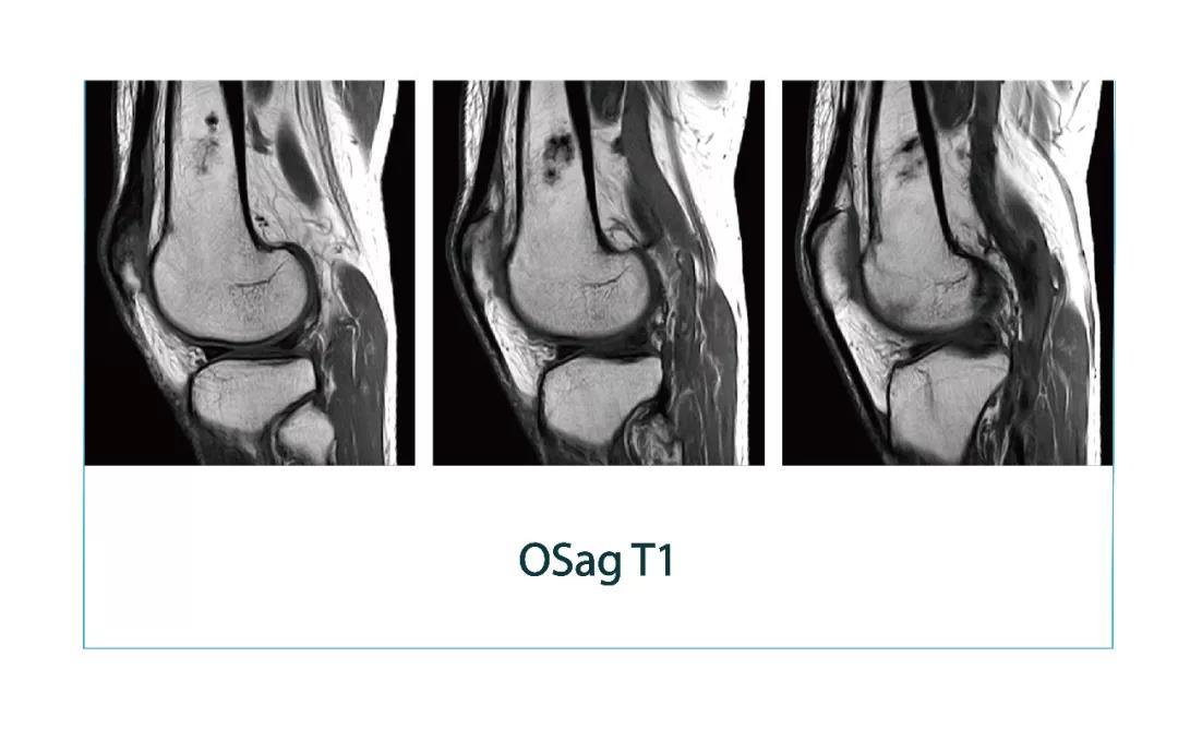 【雷竞技首页影像档案】磁共振影像病例分享(编号20180112)