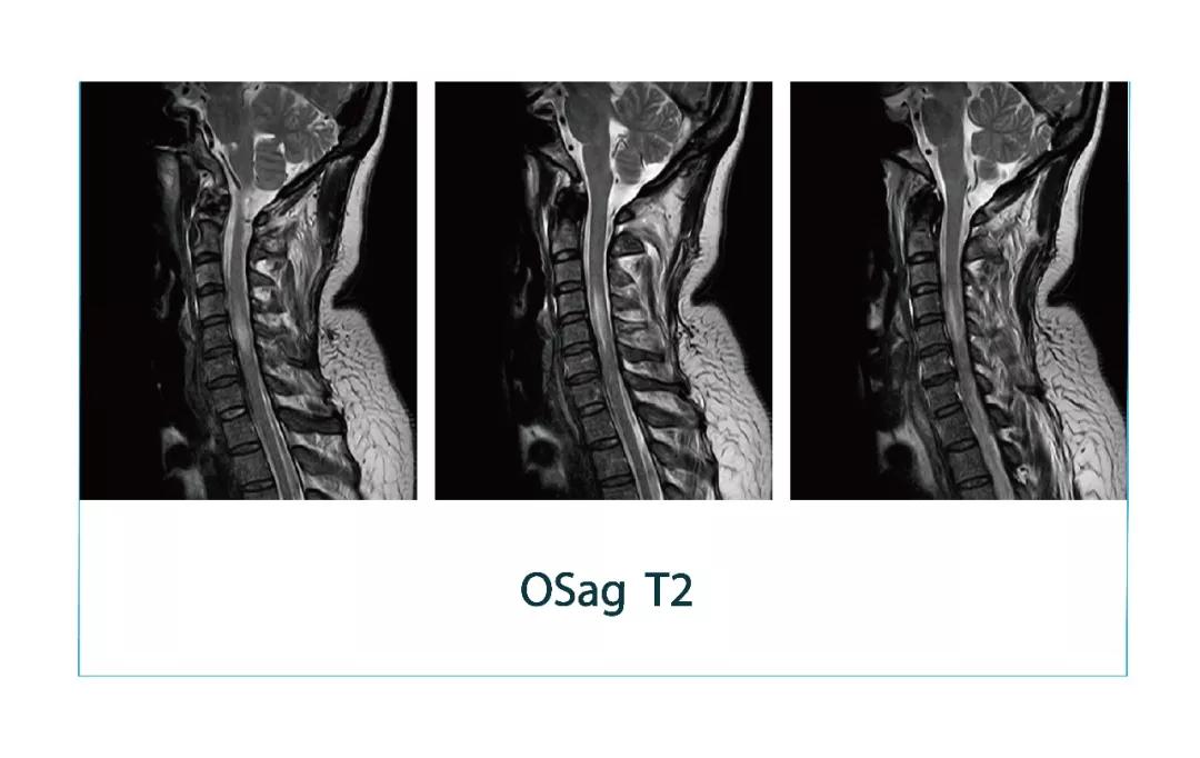【雷竞技首页影像档案】20180330磁共振影像病例结果讨论