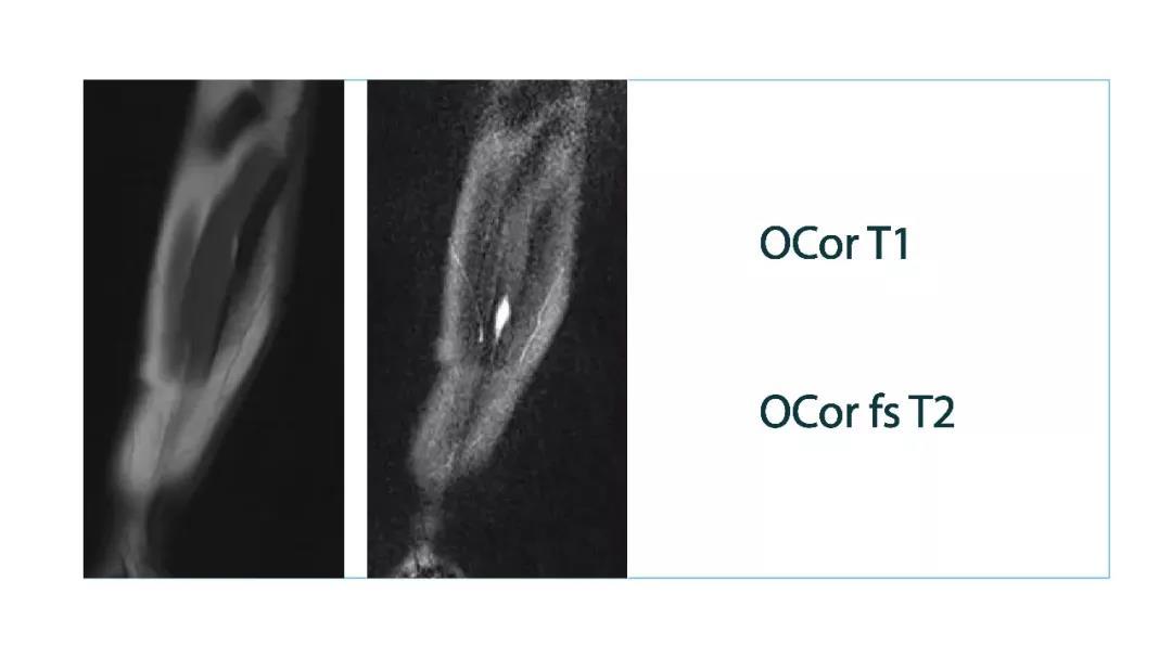 【雷竞技首页影像档案】磁共振影像病例分享(编号20180202)