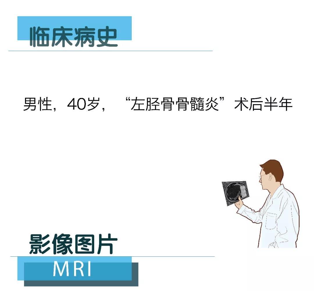 【雷竞技首页影像档案】磁共振影像病例分享(编号20180209)