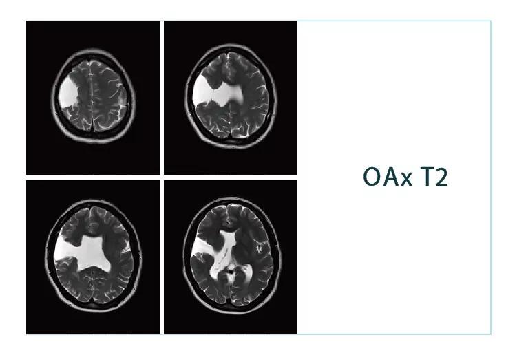 【雷竞技首页影像档案】20180824磁共振影像病例结果讨论