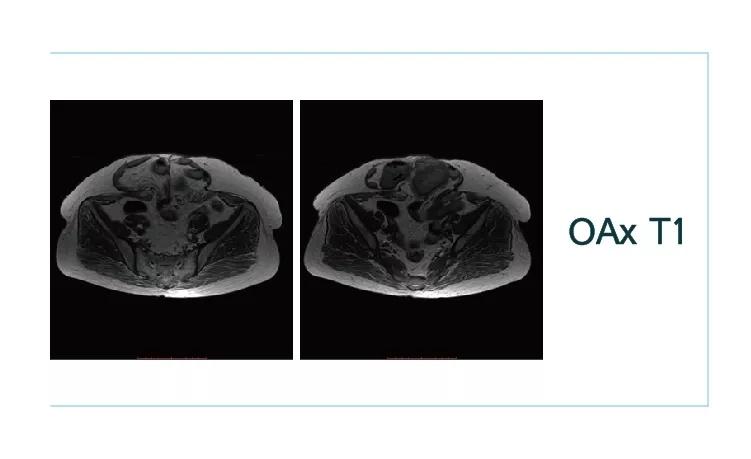 【雷竞技首页影像档案】20180921磁共振影像病例讨论结果