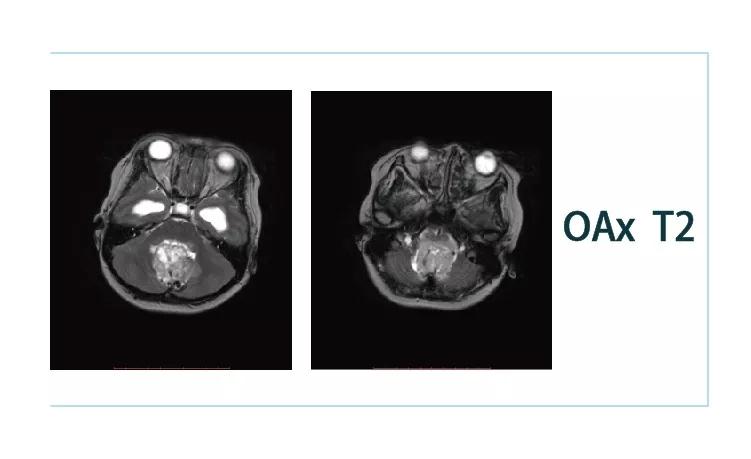 【雷竞技首页影像档案】20181026磁共振影像病例结果讨论