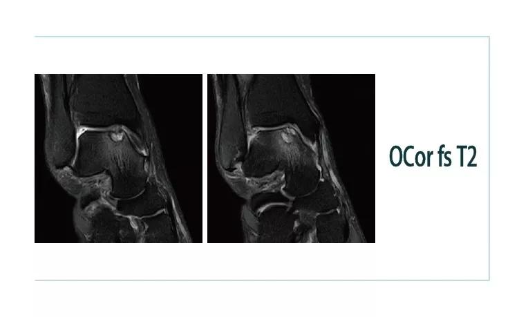 【雷竞技首页影像档案】20181102磁共振影像病例结果讨论