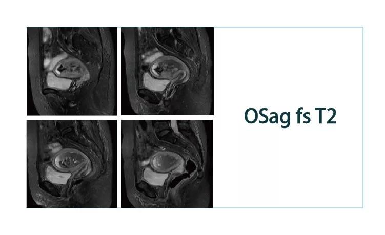 【雷竞技首页影像档案】20181116磁共振影像病例结果讨论