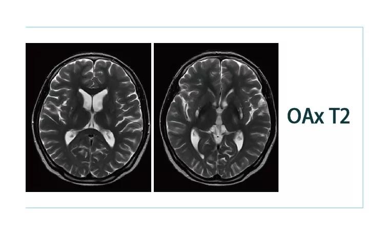 【雷竞技首页影像档案】20181130磁共振影像病例结果讨论