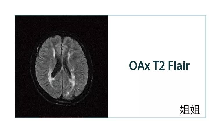 【雷竞技首页影像档案】20181207磁共振影像病例结果讨论