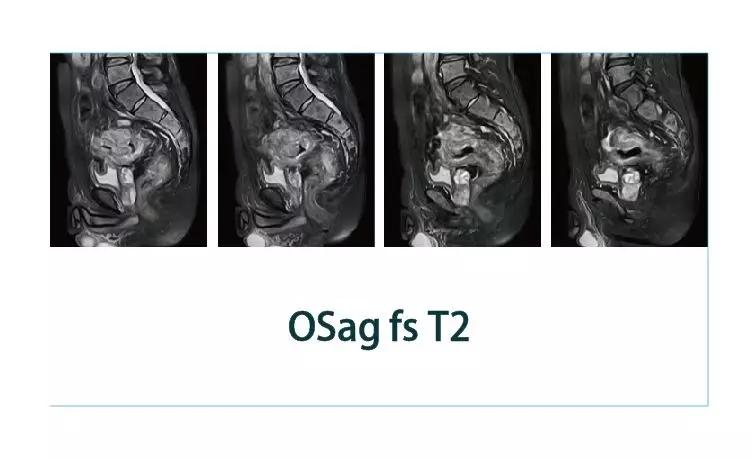 【雷竞技首页影像档案】20181229磁共振影像病例结果讨论