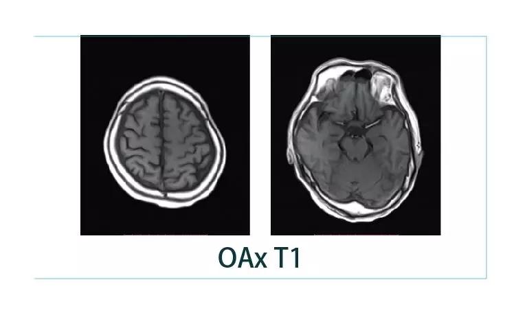 【雷竞技首页影像档案】20190125磁共振影像病例结果讨论