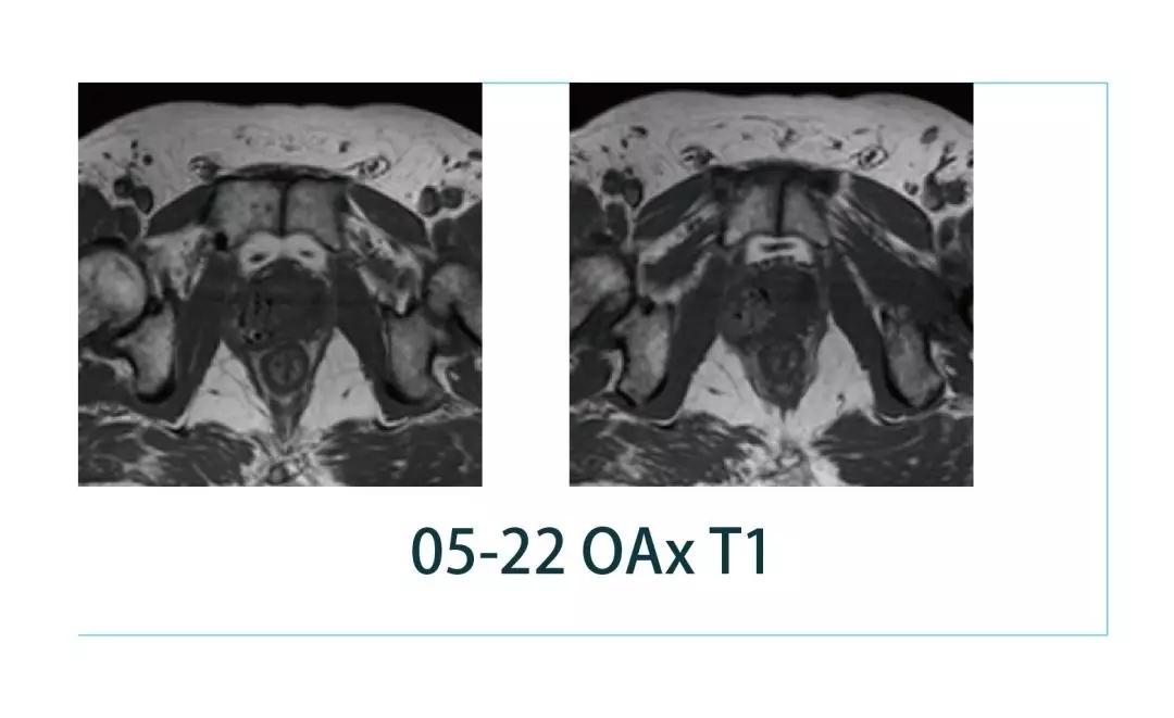 【雷竞技首页影像档案】磁共振影像病例分享(编号20190308)
