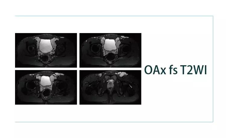 【雷竞技首页影像档案】20190405磁共振影像病例结果讨论