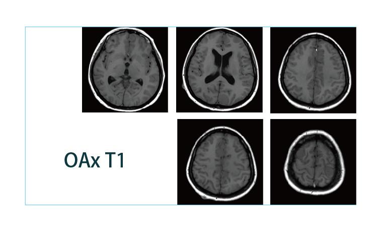 【雷竞技首页影像档案】20190412磁共振影像病例结果讨论