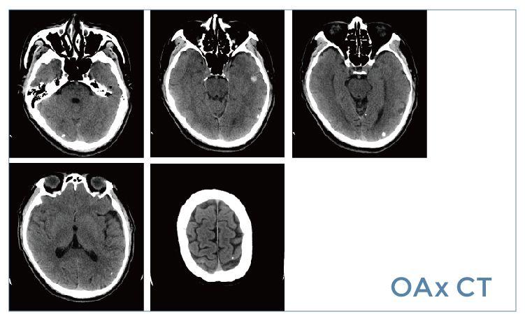 【雷竞技首页影像档案】20190531磁共振影像病例结果讨论