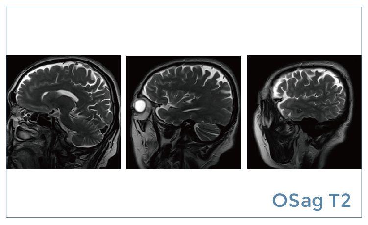 【雷竞技首页影像档案】磁共振影像病例分享(编号20190531)