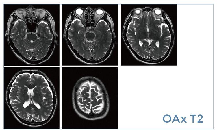 【雷竞技首页影像档案】20190524磁共振影像病例结果讨论