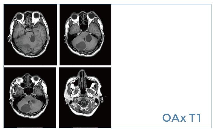 【雷竞技首页影像档案】20190614磁共振影像病例结果讨论