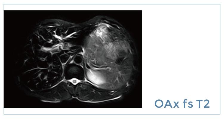 【雷竞技首页影像档案】20190628磁共振影像病例结果讨论