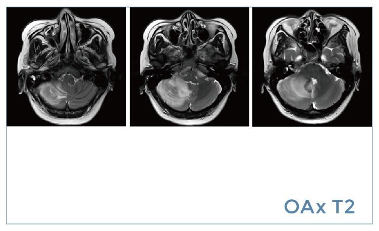 【雷竞技首页影像档案】20190802磁共振影像病例结果讨论