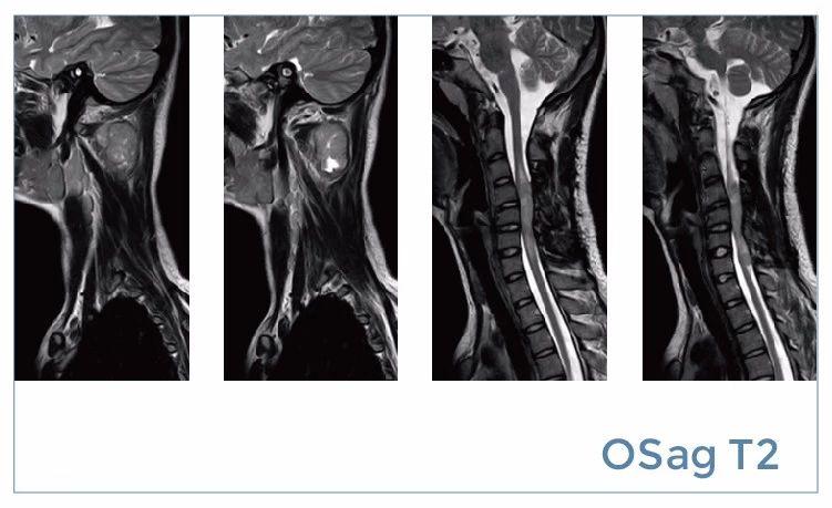 【雷竞技首页影像档案】20190816磁共振影像病例结果讨论