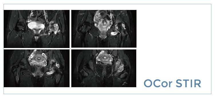 【雷竞技首页影像档案】磁共振影像病例分享(编号20190809)