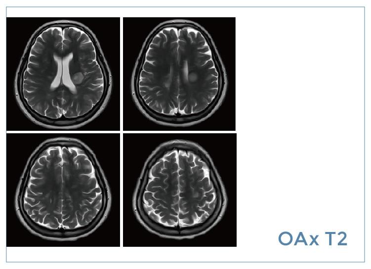 【雷竞技首页影像档案】20190823磁共振影像病例结果讨论