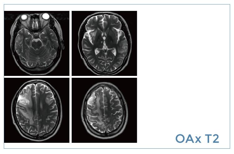 【雷竞技首页影像档案】20191129磁共振影像病例结果讨论