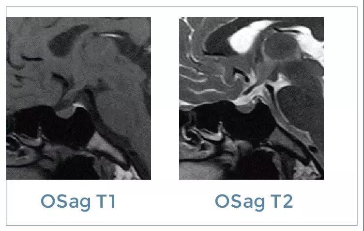 【雷竞技首页影像档案】磁共振影像病例分享(编号20200110)