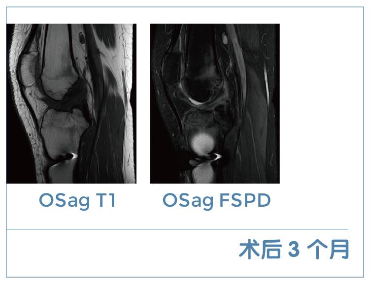 【雷竞技首页影像档案】磁共振影像病例分享(编号20200306)