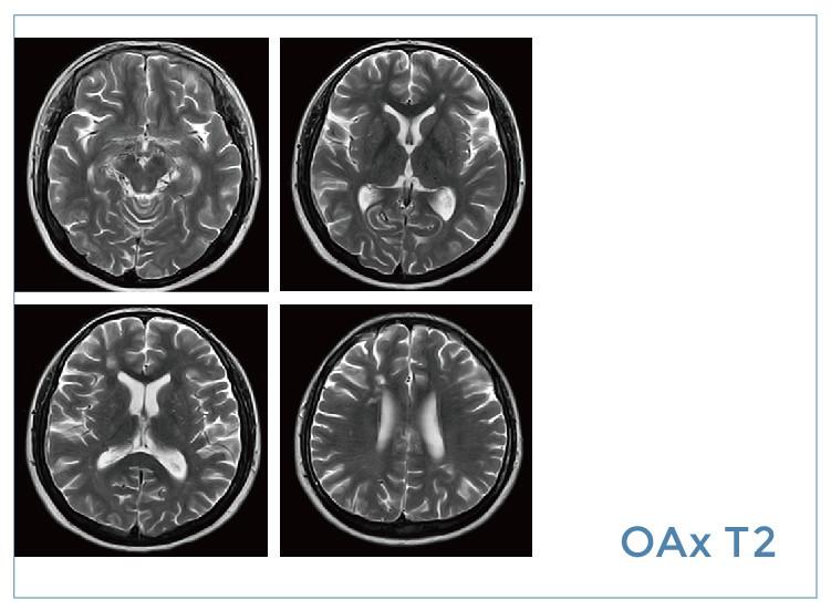 【雷竞技首页影像档案】20200313磁共振影像病例结果讨论