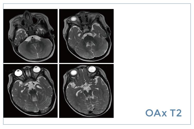 【雷竞技首页影像档案】20200327磁共振影像病例结果讨论