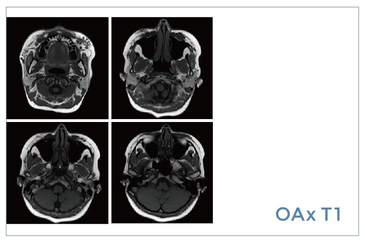 【雷竞技首页影像档案】20200515磁共振影像病例结果讨论