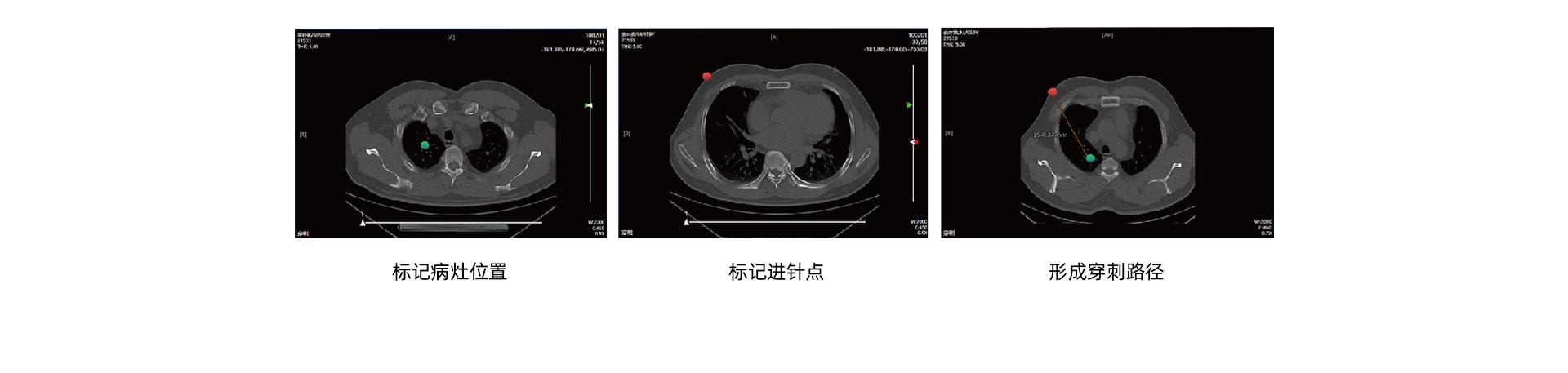 (影像介入)CT介入手术移动工作站_05.jpg